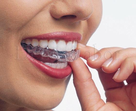 Капы для зубов в Москве, цена на изготовление капы
